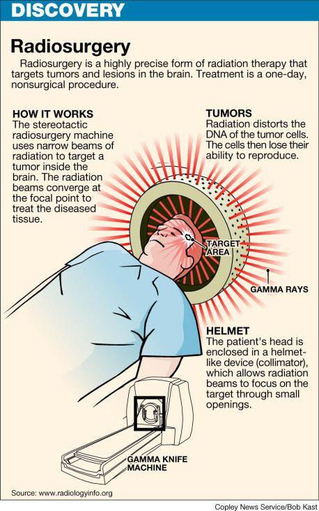 Ilustración de bisturí de rayos gamma